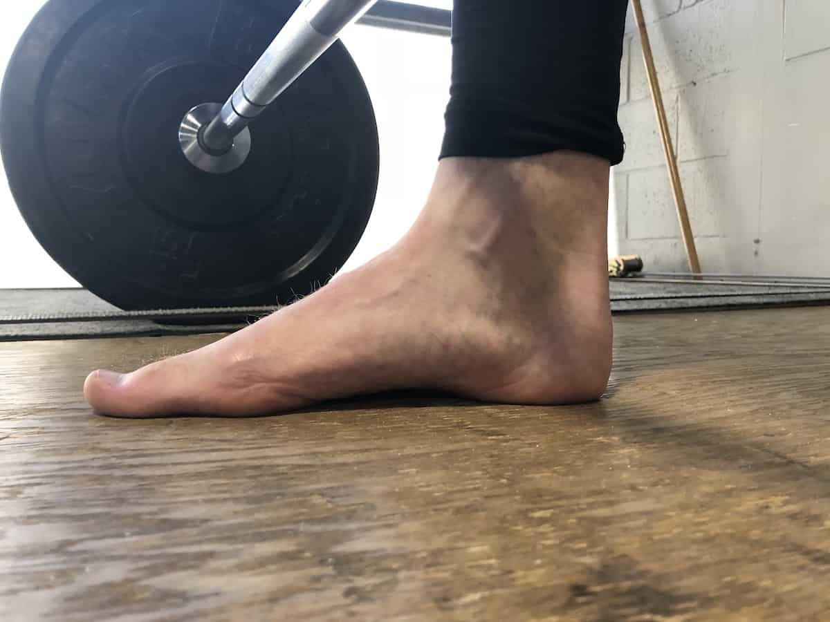 Why do arch supports hurt my feet